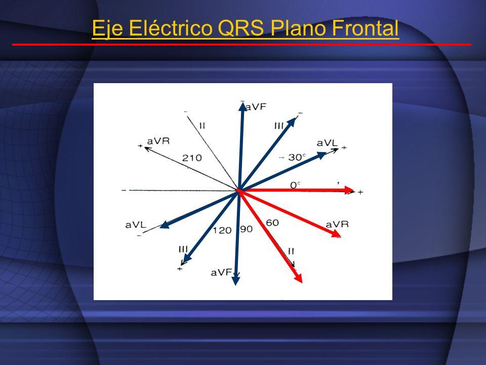 Eje Eléctrico QRS Plano Frontal