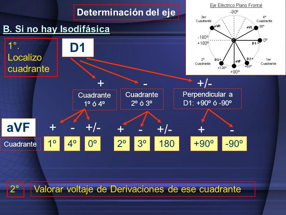 D1 + - +/- Cuadrante 1º ó 4º Cuadrante 2º ó 3º Perpendicular a D1: +90º ó -90º aVF Cuadrante 1º + - +/- 4º0º2º3º180 + - +/- +90º-90º + - B. Si no hay