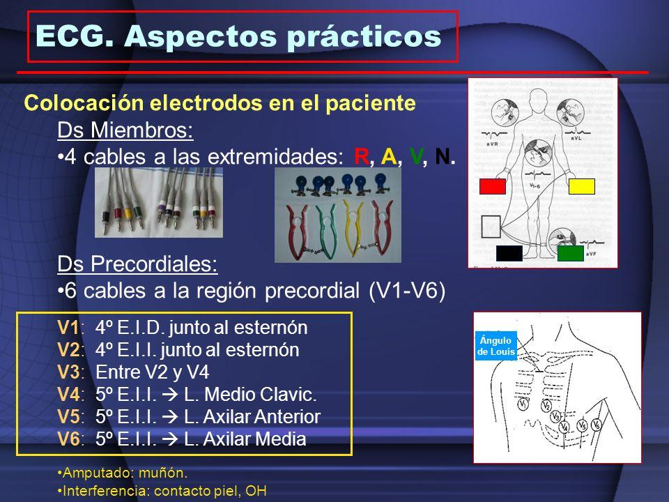 ECG. Aspectos prácticos Ángulo de Louis Colocación electrodos en el paciente Ds Miembros: 4 cables a las extremidades: R, A, V, N. Ds Precordiales: 6