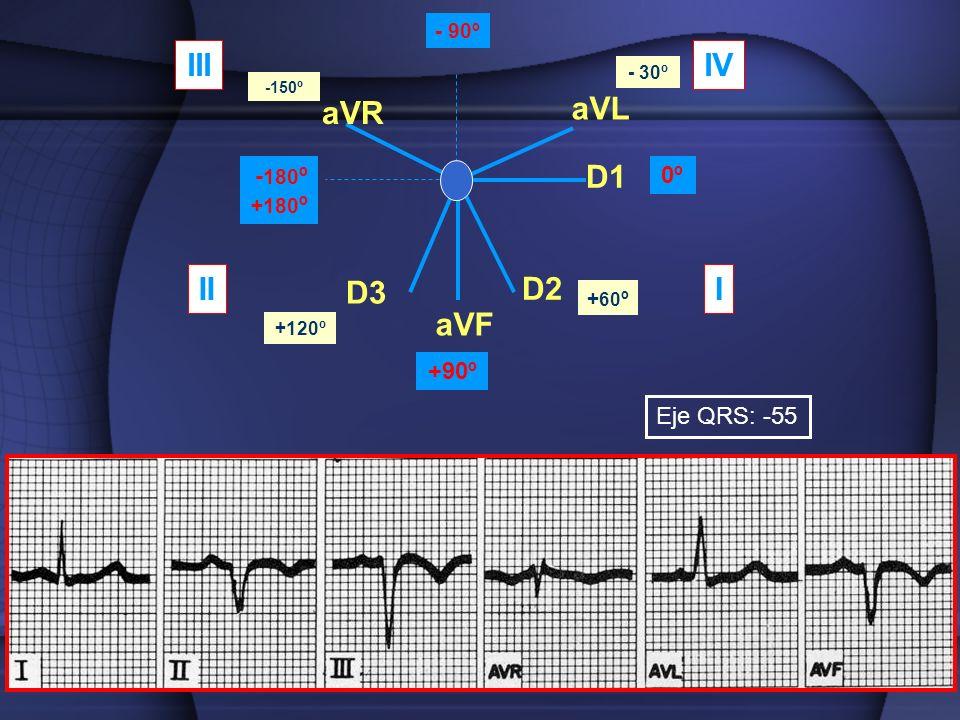 aVR aVL aVF D1 D2 D3 0º +90º - 180 º +180 º - 90º - 30º -150º + 60 º +120º III IIIIV Eje QRS: -55