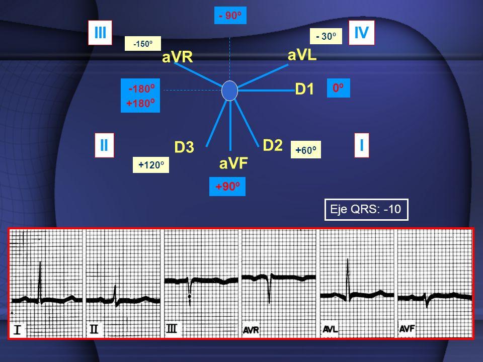 aVR aVL aVF D1 D2 D3 0º +90º - 180 º +180 º - 90º - 30º -150º + 60 º +120º III IIIIV Eje QRS: -10