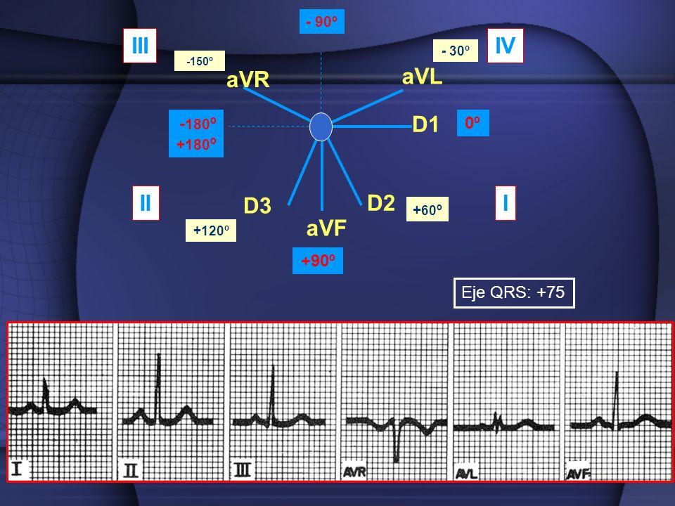 aVR aVL aVF D1 D2 D3 0º +90º - 180 º +180 º - 90º - 30º -150º + 60 º +120º III IIIIV Eje QRS: +75