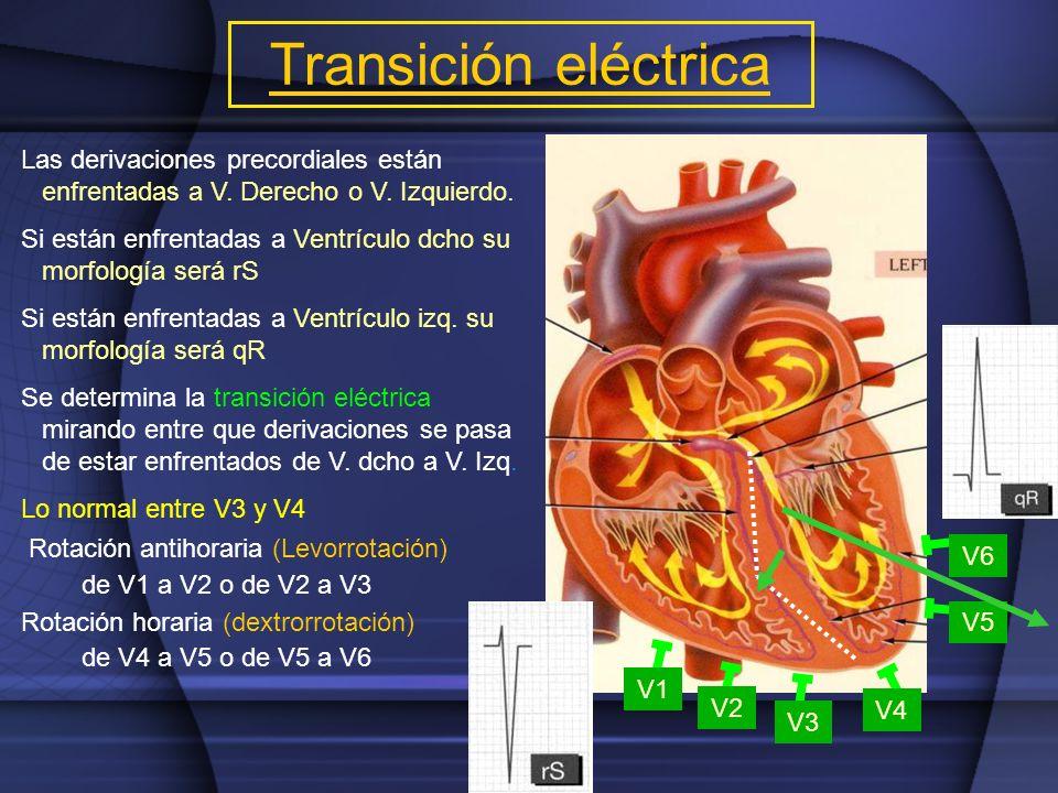 Transición eléctrica Las derivaciones precordiales están enfrentadas a V. Derecho o V. Izquierdo. Si están enfrentadas a Ventrículo dcho su morfología