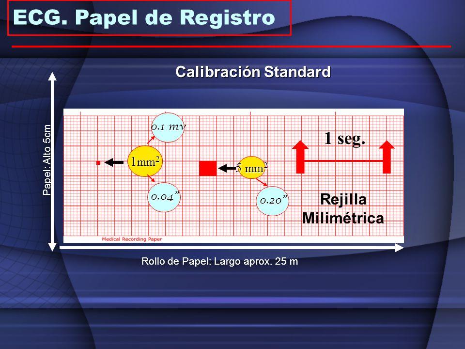1 mm 2 5 mm 2 1 seg. Rejilla Milimétrica Papel: Alto 5cm Rollo de Papel: Largo aprox. 25 m 0.04 0.20 0.1 mv Calibración Standard ECG. Papel de Registr