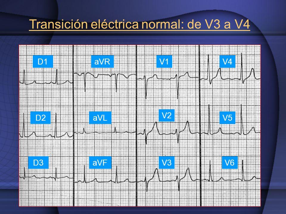 Transición eléctrica normal: de V3 a V4 V1 V2 V3 V4 V5 V6 D1 D2 D3 aVR aVL aVF