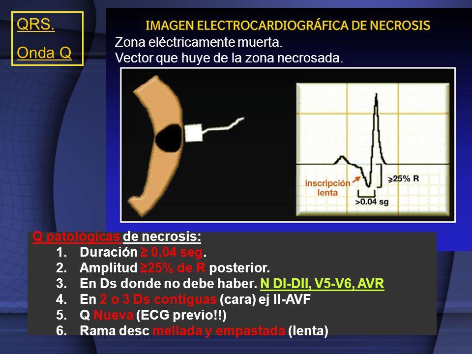 Q patológicas de necrosis: 1.Duración 0,04 seg. 2.Amplitud 25% de R posterior. 3.En Ds donde no debe haber. N DI-DII, V5-V6, AVR 4.En 2 o 3 Ds contigu