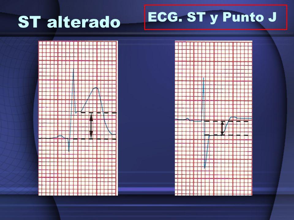 ST alterado ECG. ST y Punto J
