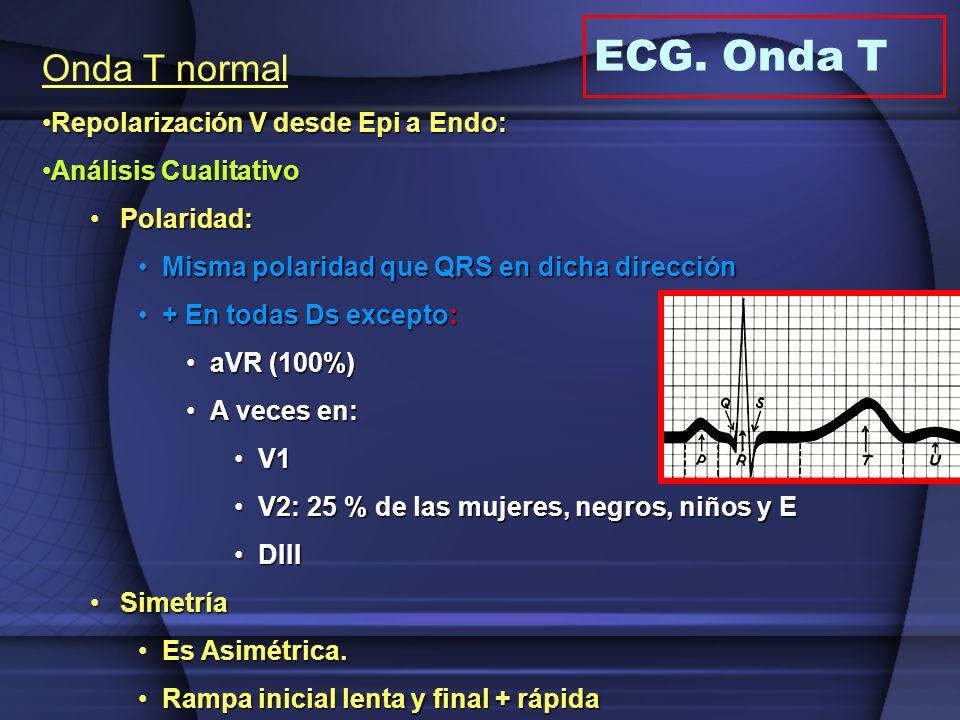Onda T normal Repolarización V desde Epi a Endo:Repolarización V desde Epi a Endo: Análisis CualitativoAnálisis Cualitativo Polaridad:Polaridad: Misma