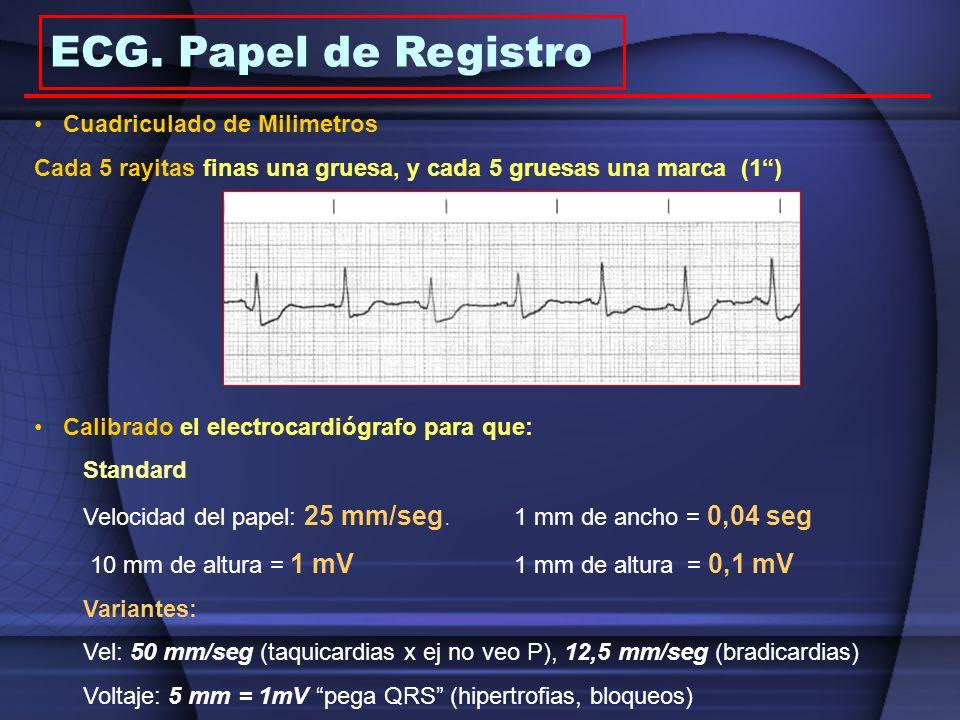 Cuadriculado de Milimetros Cada 5 rayitas finas una gruesa, y cada 5 gruesas una marca (1) Calibrado el electrocardiógrafo para que: Standard Velocida