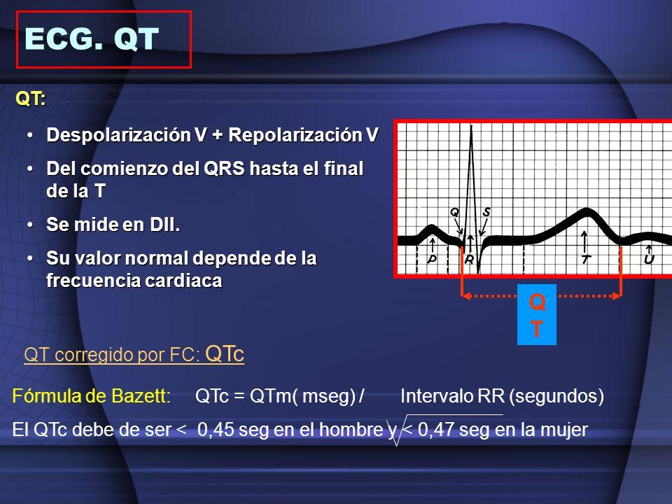 QT: Despolarización V + Repolarización VDespolarización V + Repolarización V Del comienzo del QRS hasta el final de la TDel comienzo del QRS hasta el
