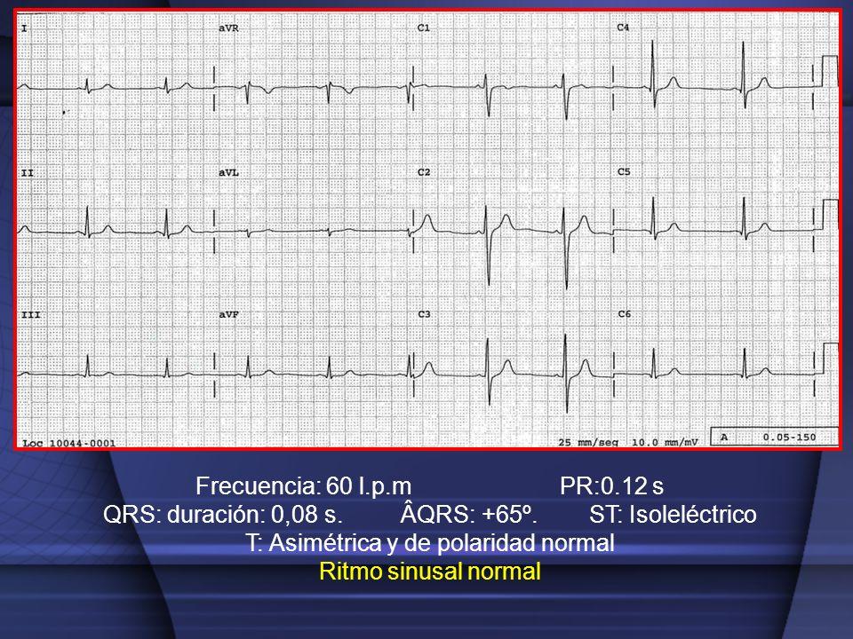 Frecuencia: 60 l.p.m PR:0.12 s QRS: duración: 0,08 s. ÂQRS: +65º. ST: Isoleléctrico T: Asimétrica y de polaridad normal Ritmo sinusal normal