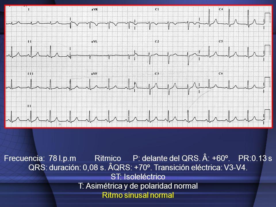 Frecuencia: 78 l.p.m Ritmico P: delante del QRS. Â: +60º. PR:0.13 s QRS: duración: 0,08 s. ÂQRS: +70º. Transición eléctrica: V3-V4. ST: Isoleléctrico