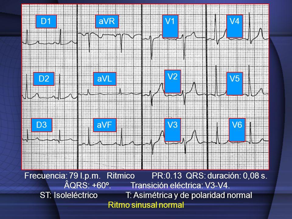 V1 V2 V3 V4 V5 V6 D1 D2 D3 aVR aVL aVF Frecuencia: 79 l.p.m. Ritmico PR:0.13 QRS: duración: 0,08 s. ÂQRS: +60º. Transición eléctrica: V3-V4. ST: Isole
