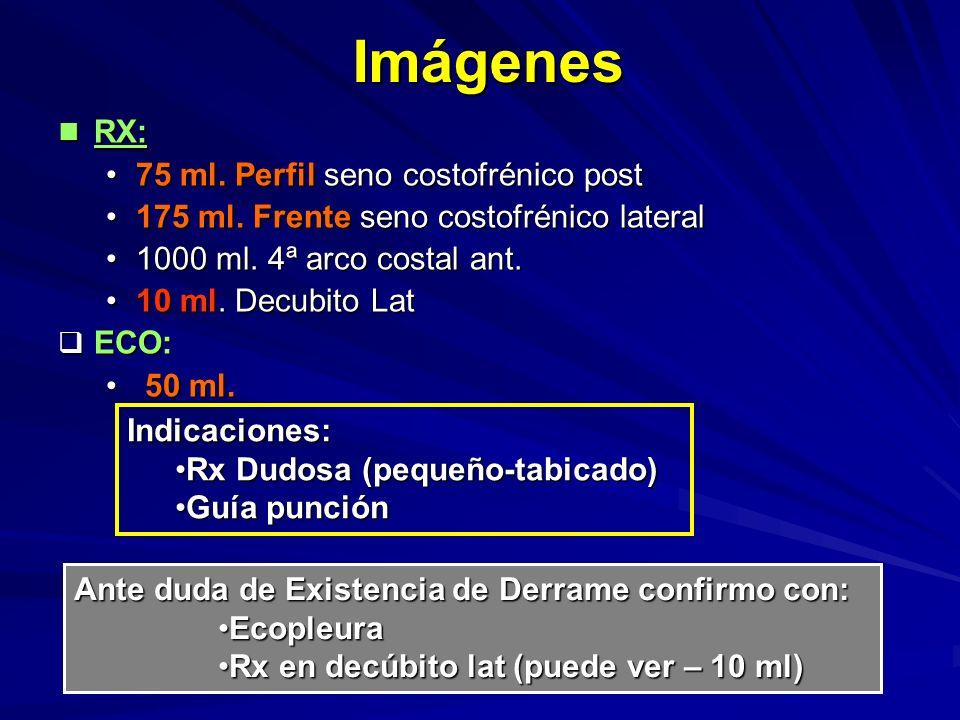 Imágenes RX: RX: 75 ml.Perfil seno costofrénico post75 ml.
