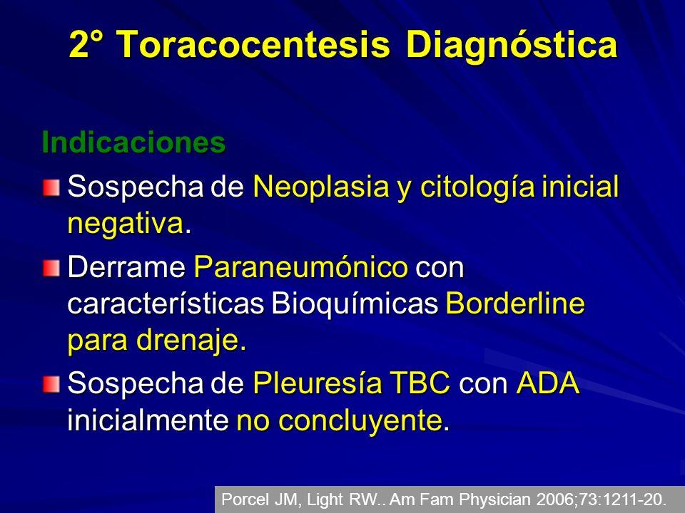 2° Toracocentesis Diagnóstica Indicaciones Sospecha de Neoplasia y citología inicial negativa. Derrame Paraneumónico con características Bioquímicas B