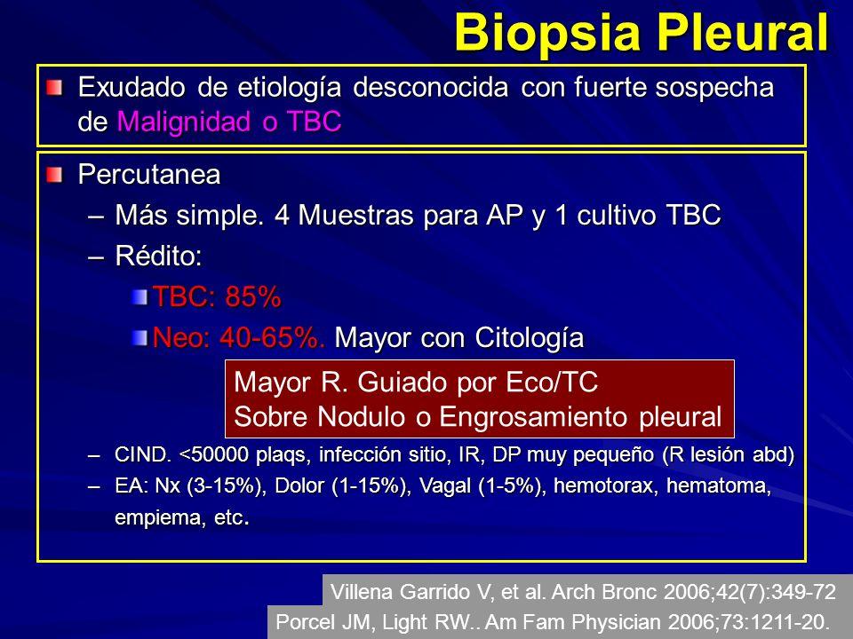 Biopsia Pleural Exudado de etiología desconocida con fuerte sospecha de Malignidad o TBC Percutanea –Más simple.