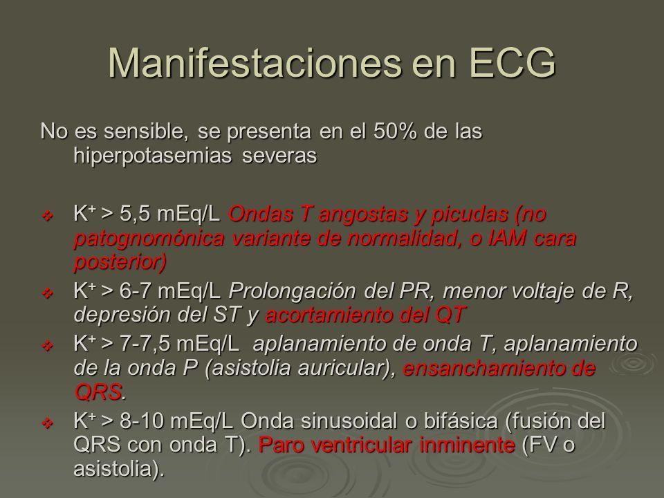 Manifestaciones en ECG No es sensible, se presenta en el 50% de las hiperpotasemias severas K + > 5,5 mEq/L Ondas T angostas y picudas (no patognomóni