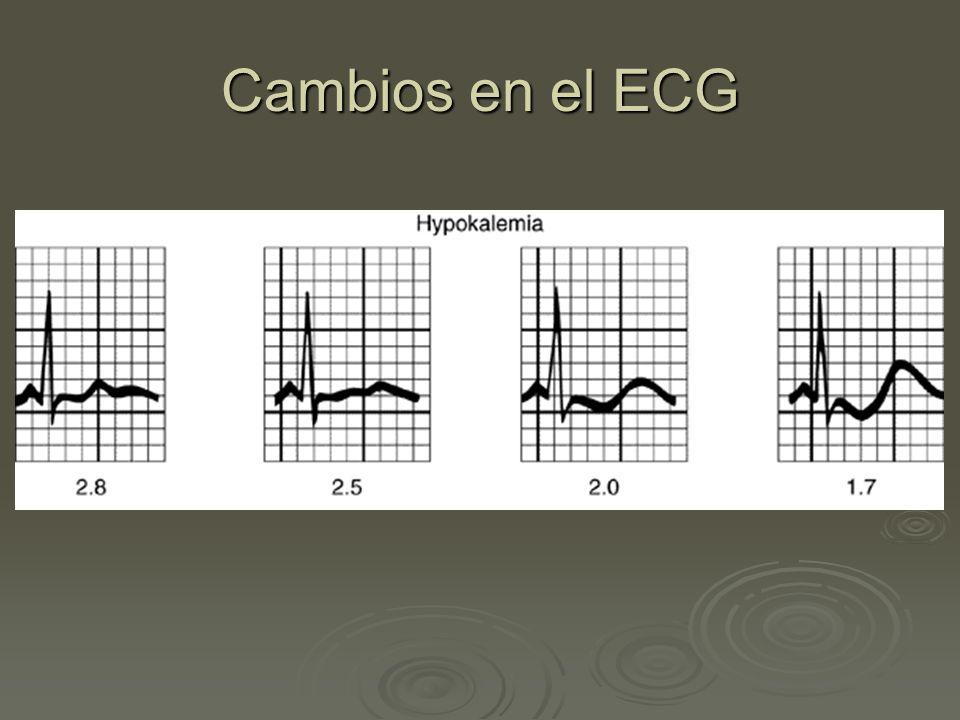 Cambios en el ECG