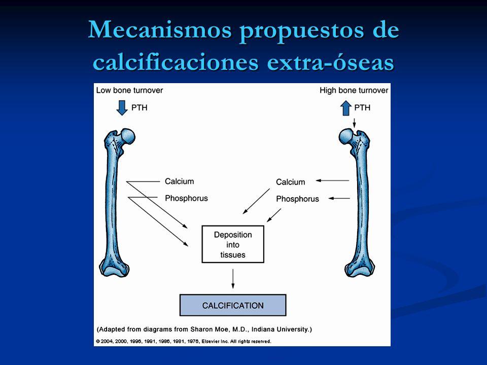 Mecanismos propuestos de calcificaciones extra-óseas