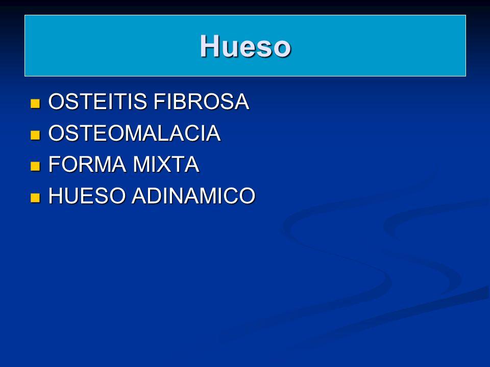 Hueso OSTEITIS FIBROSA OSTEITIS FIBROSA OSTEOMALACIA OSTEOMALACIA FORMA MIXTA FORMA MIXTA HUESO ADINAMICO HUESO ADINAMICO