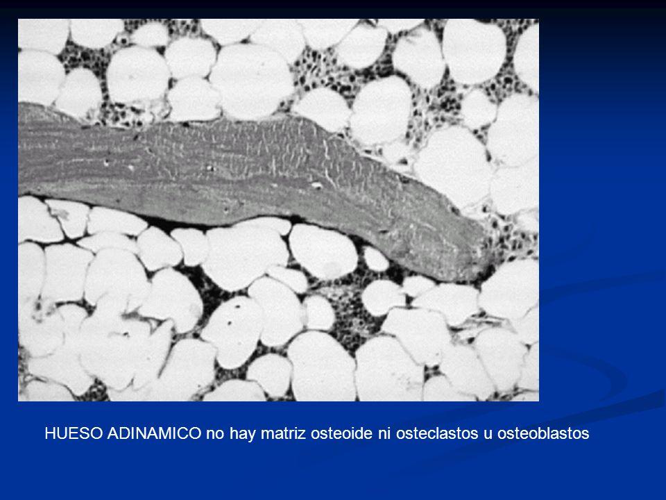 HUESO ADINAMICO no hay matriz osteoide ni osteclastos u osteoblastos