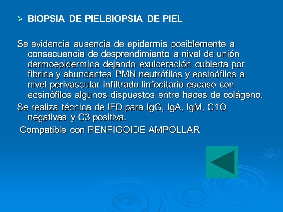 BIOPSIA DE PIELBIOPSIA DE PIEL Se evidencia ausencia de epidermis posiblemente a consecuencia de desprendimiento a nivel de unión dermoepidermica deja