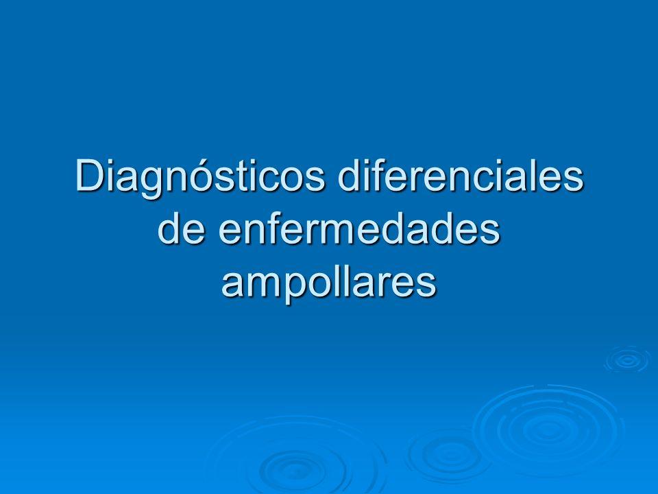 Diagnósticos diferenciales de enfermedades ampollares