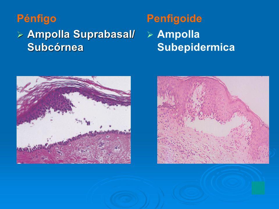 Pénfigo Ampolla Suprabasal/ Subcórnea Ampolla Suprabasal/ Subcórnea Penfigoide Ampolla Subepidermica