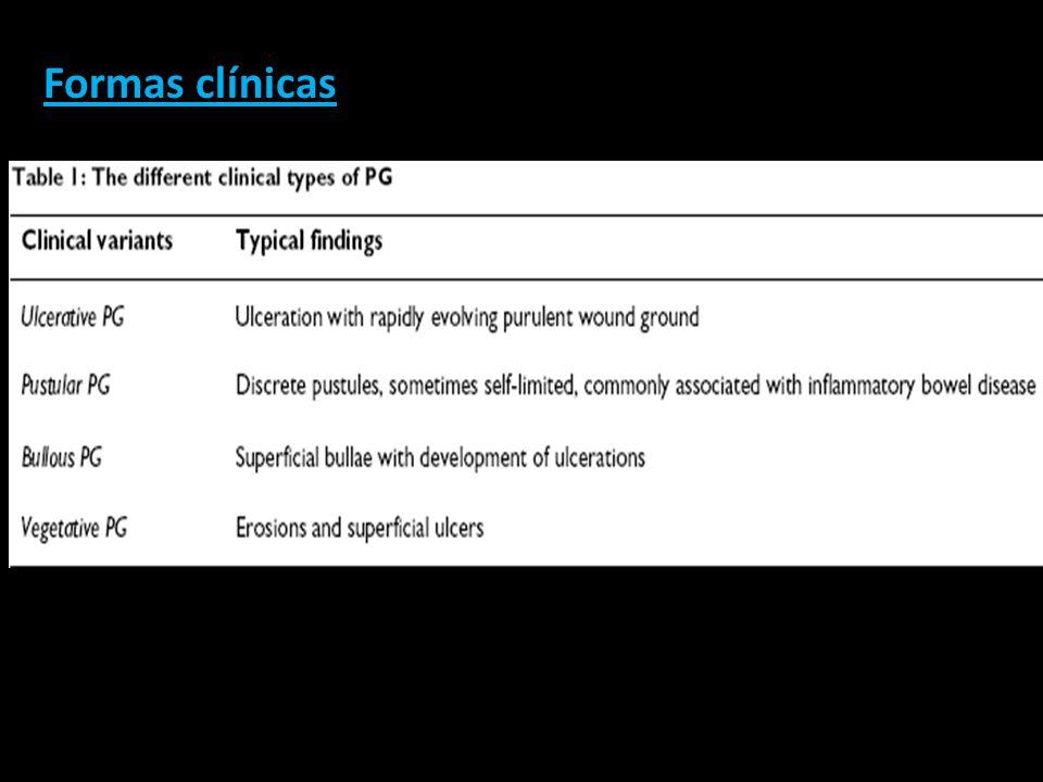 Formas clínicas