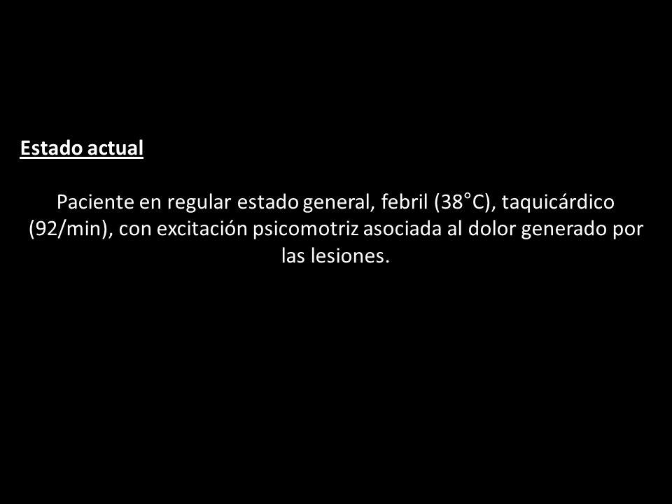 Estado actual Paciente en regular estado general, febril (38°C), taquicárdico (92/min), con excitación psicomotriz asociada al dolor generado por las