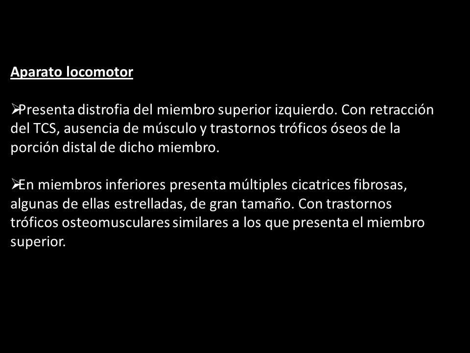 Aparato locomotor Presenta distrofia del miembro superior izquierdo. Con retracción del TCS, ausencia de músculo y trastornos tróficos óseos de la por