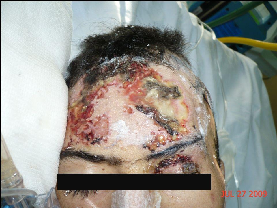 Enfermedades asociadas a Pioderma Gangrenoso.