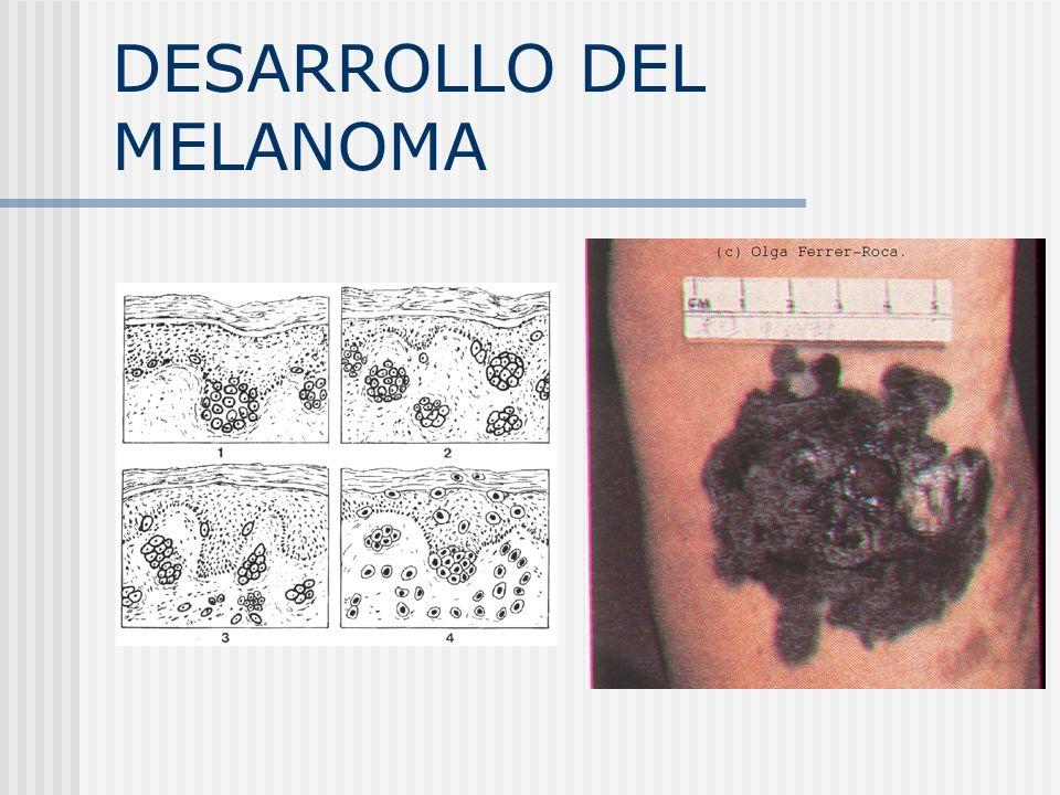 DESARROLLO DEL MELANOMA