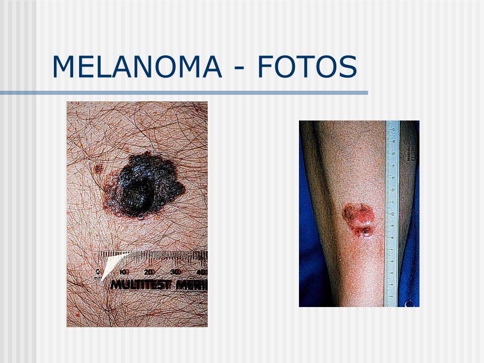 MELANOMA - FOTOS
