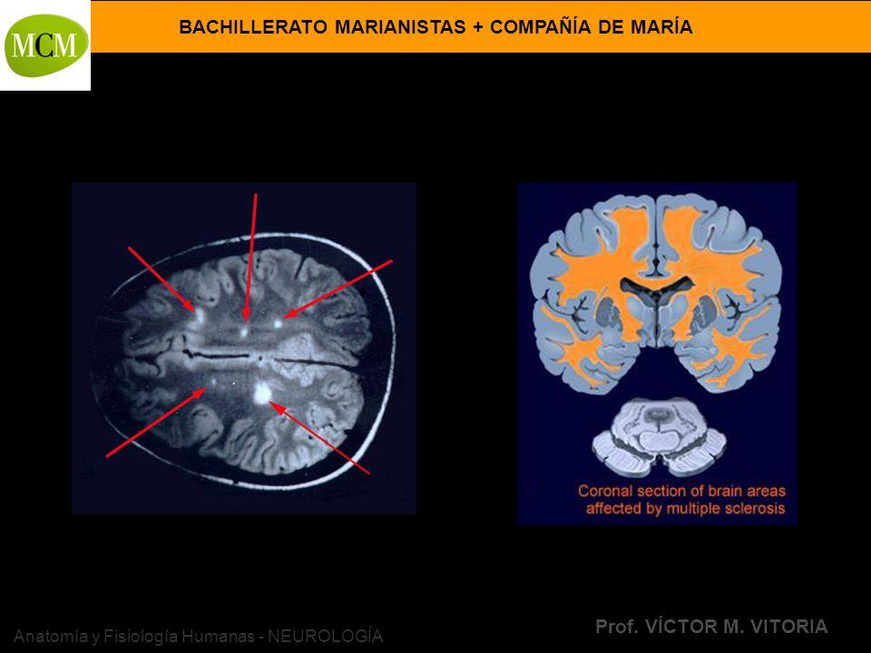 BACHILLERATO MARIANISTAS + COMPAÑÍA DE MARÍA Prof. VÍCTOR M. VITORIA Anatomía y Fisiología Humanas - NEUROLOGÍA