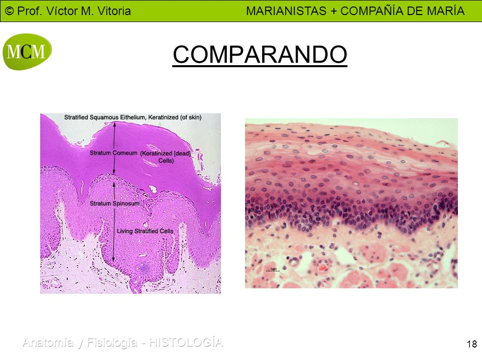 © Prof. Víctor M. Vitoria MARIANISTAS + COMPAÑÍA DE MARÍA 18 COMPARANDO