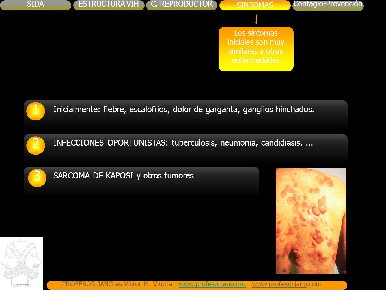 SIDAESTRUCTURA VIHC.REPRODUCTORSINTOMAS Contagio-Prevención PROFESOR JANO es Víctor M.