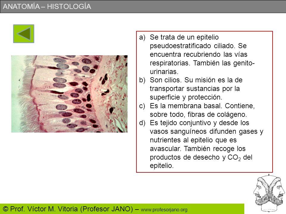 ANATOMÍA – HISTOLOGÍA © Prof. Víctor M. Vitoria (Profesor JANO) – www.profesorjano.org a)Identifica lo más precisamente posible el tejido nº 1. ¿dónde
