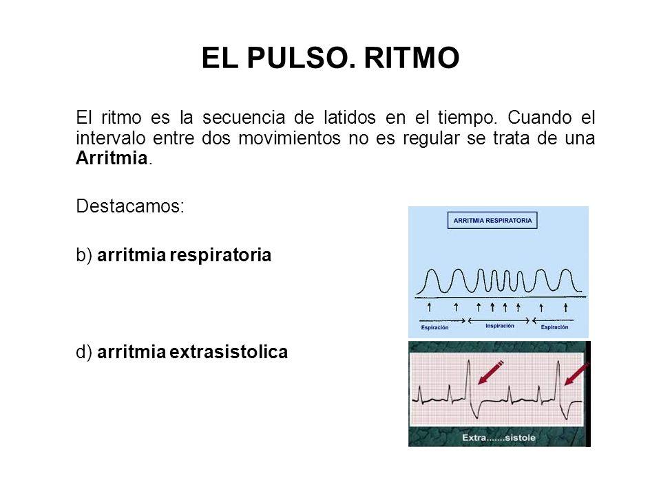 El ritmo es la secuencia de latidos en el tiempo. Cuando el intervalo entre dos movimientos no es regular se trata de una Arritmia. Destacamos: b) arr