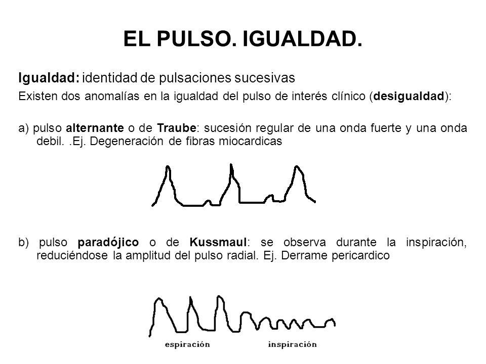 Igualdad: identidad de pulsaciones sucesivas Existen dos anomalías en la igualdad del pulso de interés clínico (desigualdad): a) pulso alternante o de