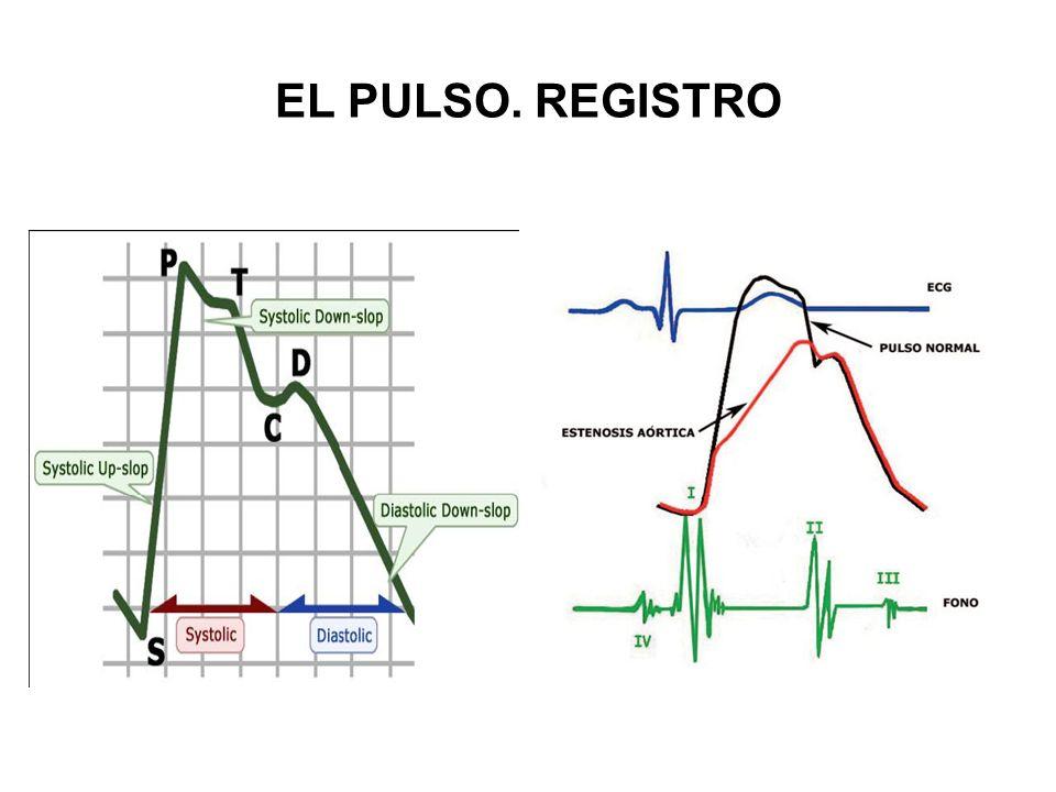a.Duro o fuerte hipertensión arterial b.Débil o blando anemia, shock, hipotensión EL PULSO.