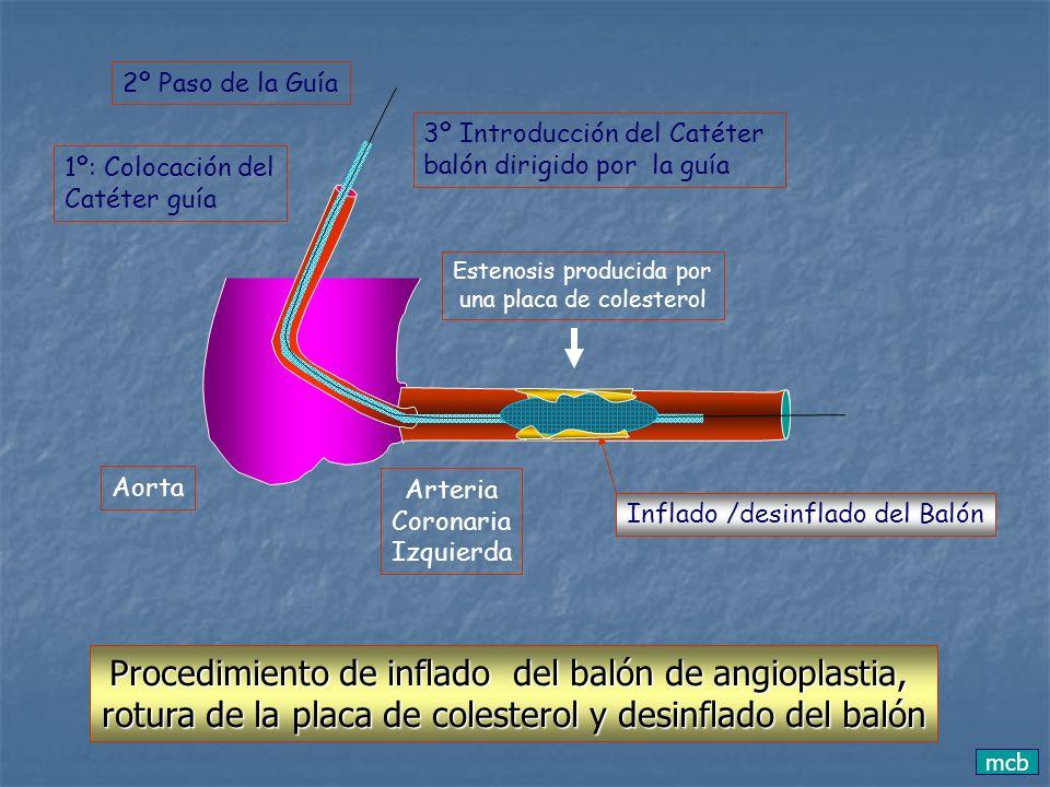 mcb Aorta Arteria Coronaria Izquierda Estenosis producida por una placa de colesterol 1º: Colocación del Catéter guía 2º Paso de la Guía 3º Introducci