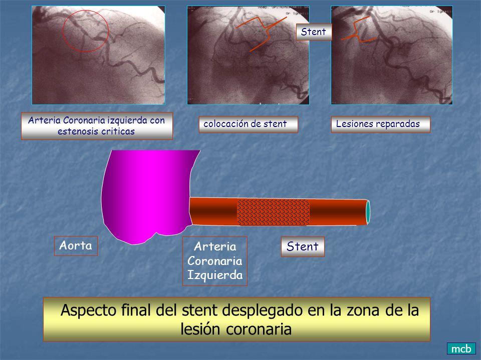 mcb Aorta Arteria Coronaria Izquierda Aspecto final del stent desplegado en la zona de la lesión coronaria Stent Arteria Coronaria izquierda con esten