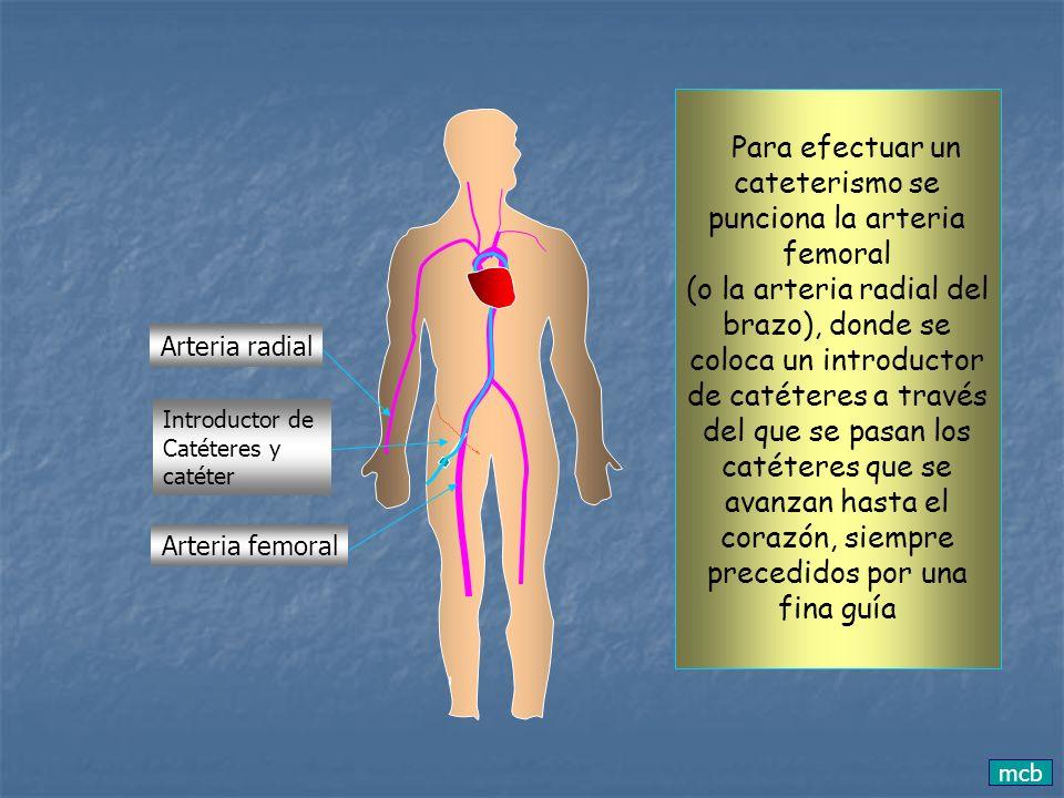 mcb Arteria femoral Arteria radial Introductor de Catéteres y catéter Para efectuar un cateterismo se punciona la arteria femoral (o la arteria radial