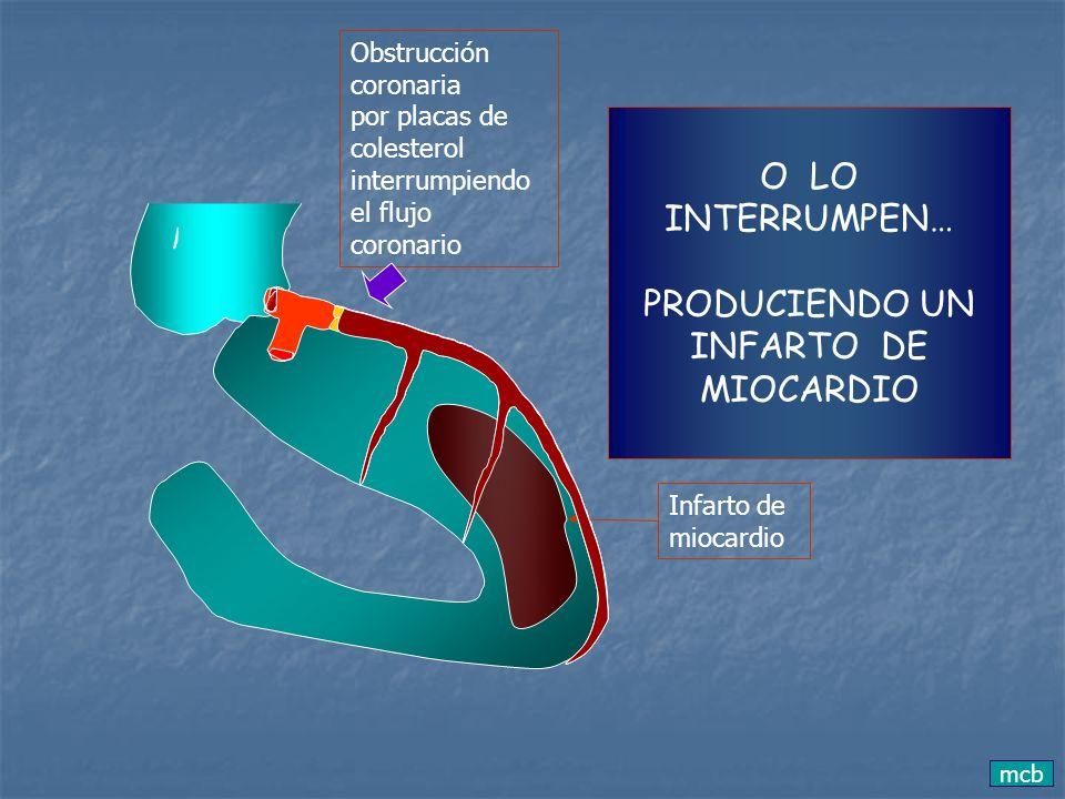 O LO INTERRUMPEN… PRODUCIENDO UN INFARTO DE MIOCARDIO Obstrucción coronaria por placas de colesterol interrumpiendo el flujo coronario Infarto de mioc