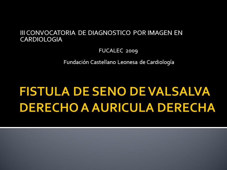 III CONVOCATORIA DE DIAGNOSTICO POR IMAGEN EN CARDIOLOGIA FUCALEC 2009 Fundación Castellano Leonesa de Cardiología