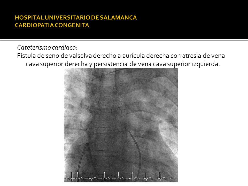 Cateterismo cardiaco: Fístula de seno de valsalva derecho a aurícula derecha con atresia de vena cava superior derecha y persistencia de vena cava sup