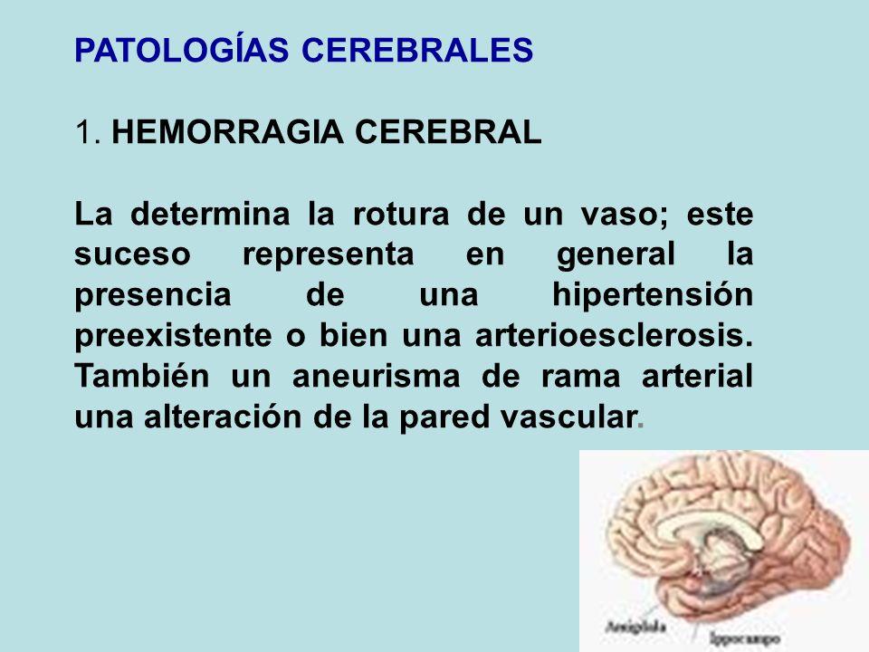 PATOLOGÍAS CEREBRALES 1. HEMORRAGIA CEREBRAL La determina la rotura de un vaso; este suceso representa en general la presencia de una hipertensión pre