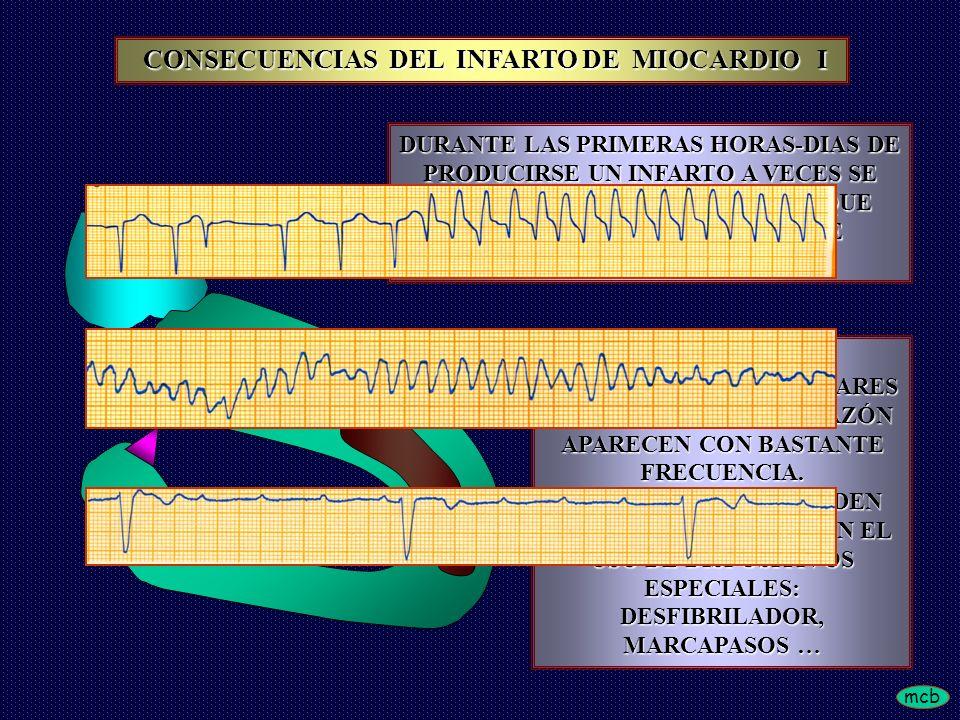 mcb DURANTE LAS PRIMERAS HORAS-DIAS DE PRODUCIRSE UN INFARTO A VECES SE PRESENTAN COMPLICACIONES, QUE PUEDEN SER POTENCIALMENTE LETALES LA PRESENCIA DE ARRITMIAS VENTRICULARES O BLOQUEOS DEL CORAZÓN APARECEN CON BASTANTE FRECUENCIA.