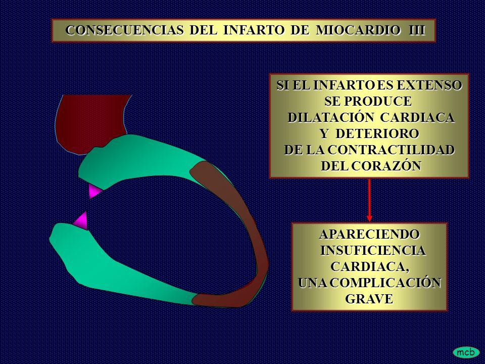 mcb SI EL INFARTO ES EXTENSO SE PRODUCE DILATACIÓN CARDIACA DILATACIÓN CARDIACA Y DETERIORO DE LA CONTRACTILIDAD DEL CORAZÓN DEL CORAZÓN APARECIENDO INSUFICIENCIA INSUFICIENCIACARDIACA, UNA COMPLICACIÓN GRAVE CONSECUENCIAS DEL INFARTO DE MIOCARDIO III CONSECUENCIAS DEL INFARTO DE MIOCARDIO III